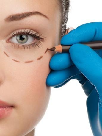 chirurgia estetica occhi